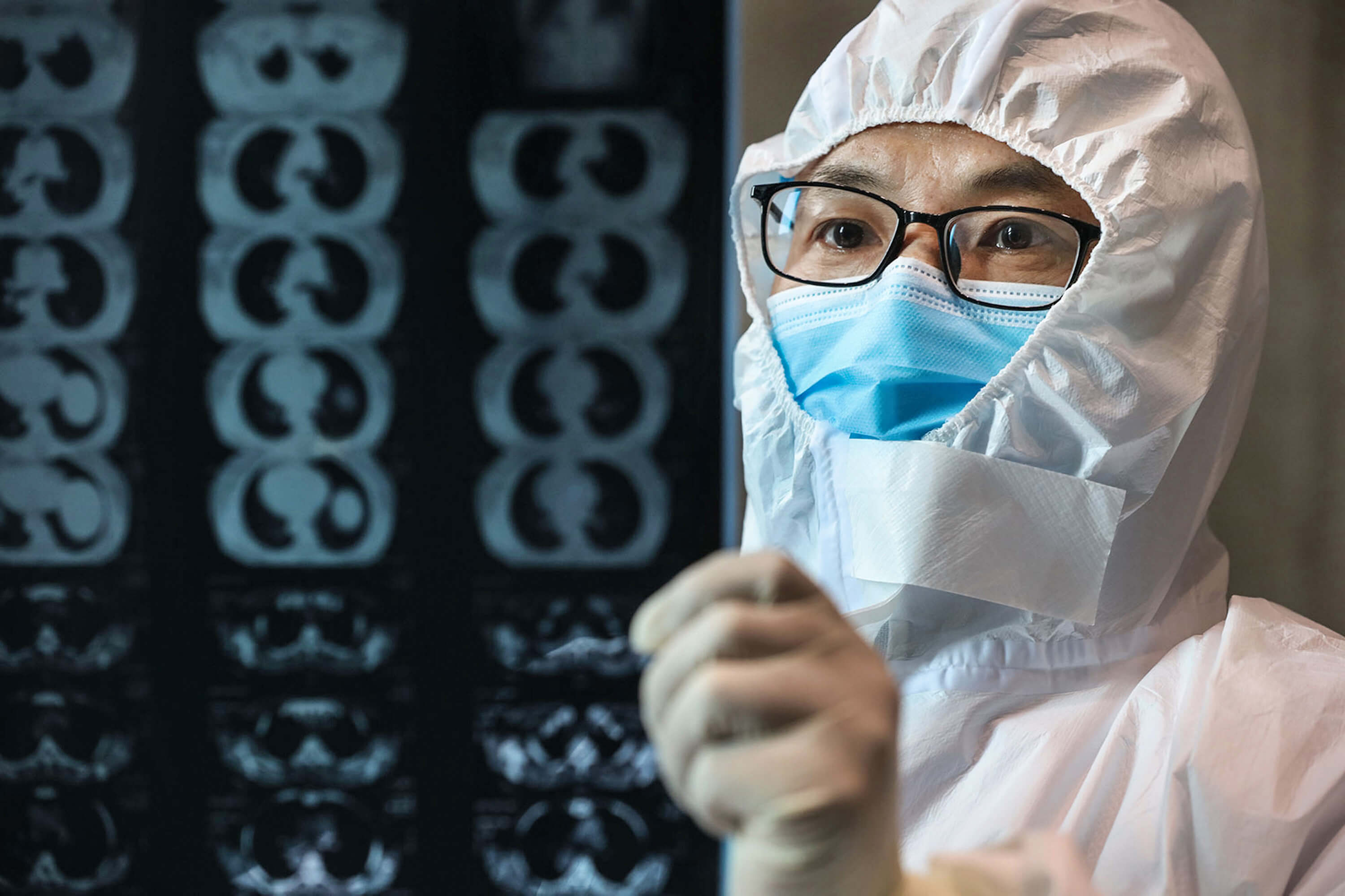 A doctor looking at a lung CT image at a hospital in Hubei province.